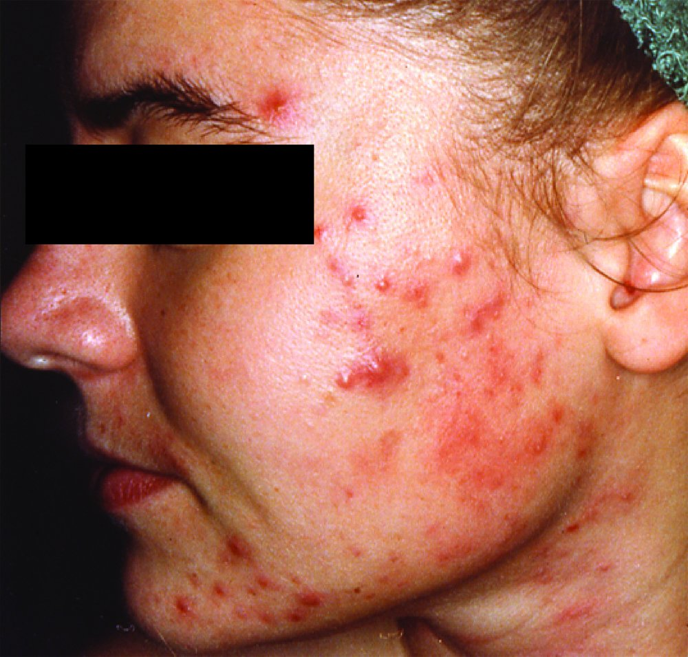 Acne Stock Images, Royalty-Free Images & Vectors ...
